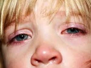 Герпес на глазах у ребенка