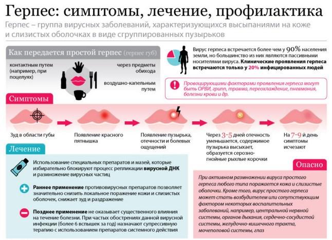 Лечение герпеса