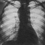 Лимфогранулематоз фото