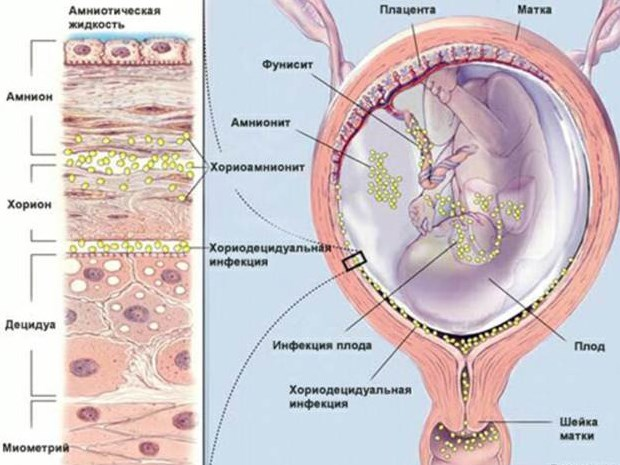 Цитомегаловирус у детей: симптоми, причини, лечение
