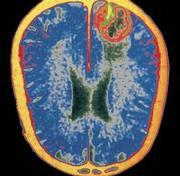 Герпес головного мозга