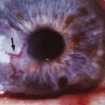 gerpeticheskiy-keratit-simptomy