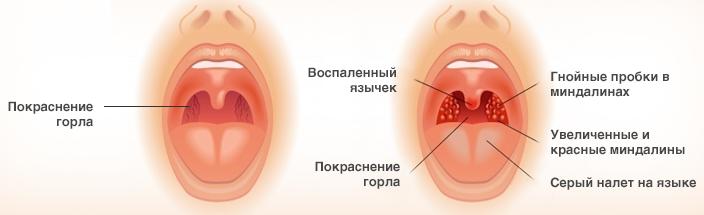 Герпесная ангина у детей: симптоми, осложнения, лечение