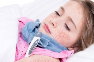 Периоди скарлатини - их особенности, симптоми, лечение