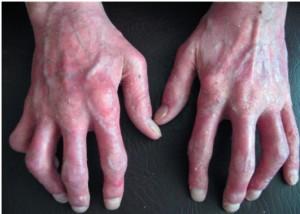 К чему приводит псориатический артрит