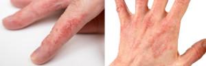 Проявления псориаза на руках