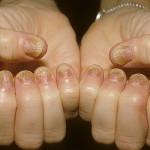Что такое псориаз - причини, симптоми, лечение, классификация