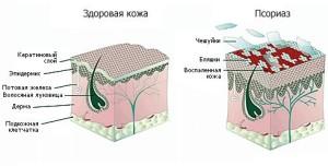 Псориаз на голове: фактори проявления, симптоми, лечение