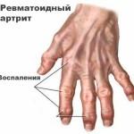 Ревматоидный артирит