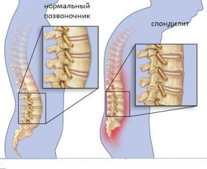 Псориатический артрит: причини, симптоми, все методи лечения