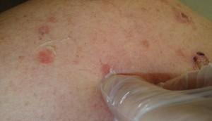 Пузирчатка – симптоми, профилактика, лечение, форми, диагностика