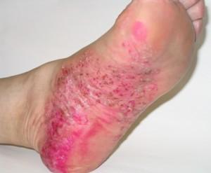 Пустулезний псориаз: форми, причини, симптоми, лечение