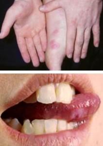 Синдром руки-ноги-рот