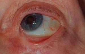 Пузырчатка глаз или рубцующий пемфигоид