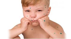 Что такое импетиго? Все особенности проявления болезни у взрослих и детей