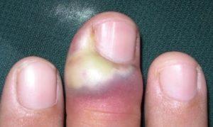 Панариций пальца - види, причини, симптоми, лечение
