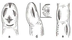 Панариций пальца