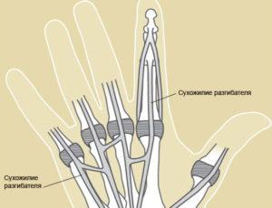 Сухожилия на пальцах