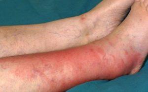 Симптомы рожистого воспаления голени