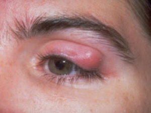 Фурункул на глазу - как выглядит