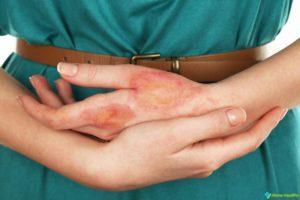 Микотическая экзема - причини, симптоми, лечение, профилактика