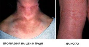 Атопический дерматит у взрослых на груди и ногах