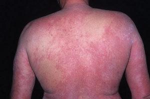 Атопический дерматит у взрослых на спине