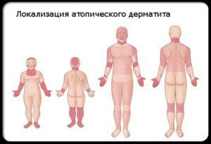Атопический дерматит - что это