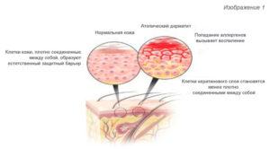 Признаки атопического дерматита у детей
