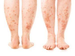 Симптомы крапивницы на ногах