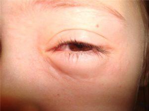 Ангионевротический отек глаз