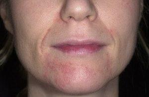 Как выглядит периоральный дерматит?