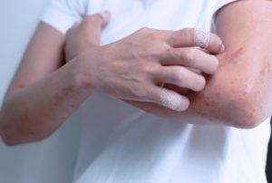 симптомы аллергической экземы