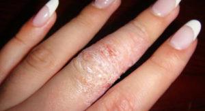 Екзема на ладонях - причини, симптоми, методи лечения, уход за кожей рук