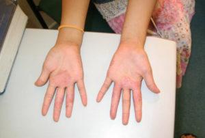 Екзема кистей рук - причини появления и симптоми разних видов болезни