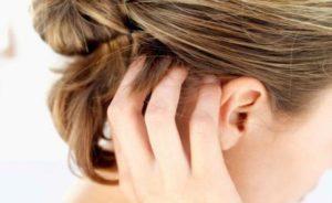 Екзема на голове в волосах - причини, симптоми, лечение, профилактика