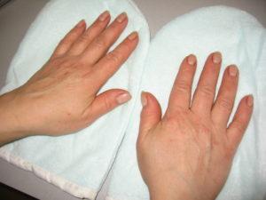 Тилотическая экзема - причини, симптоми, лечение, профилактика