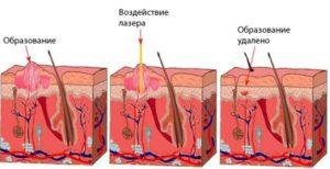 Папилломи на голове - причини, симптоми, лечение
