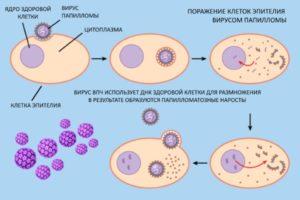 Анализ на папилломавирус у женщин