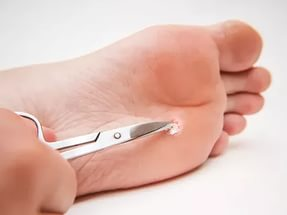Папилломи на ступнях - причини, симптоми, методи лечения