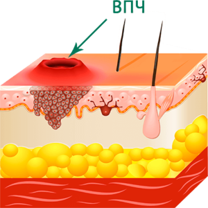 Подкожнаябородавка (шипица) - причини, симптоми, методи лечения