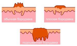 Все о строении бородавок - фото, корень, структура
