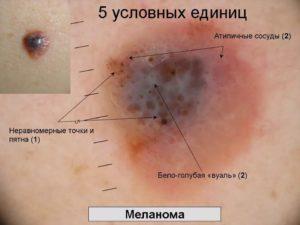 Злокачественние бородавки - причини появления, симптоми, лечение