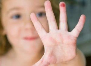 Папилломы у детей - фото, причины образований, лечение и удаление