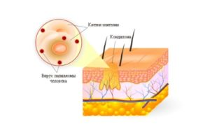 Папилломи шейки матки - види, причини, симптоми, диагностика и лечение
