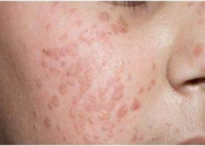 Плоские бородавки на лице - причини появления, симптоми, лечение