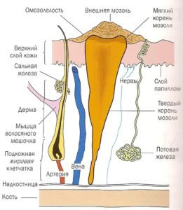 Мозольние бородавки - фото, причини, диагностика и лечение