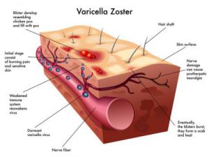 Особенности вируса Varicella Zoster