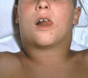 Дифтерия у взрослих: симптоми, лечение, осложнения, при беременности