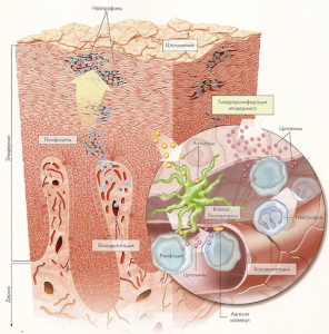 Появление псориаза